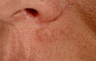 hudkræft