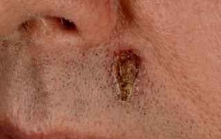 hudkræft sår der ikke vil hele
